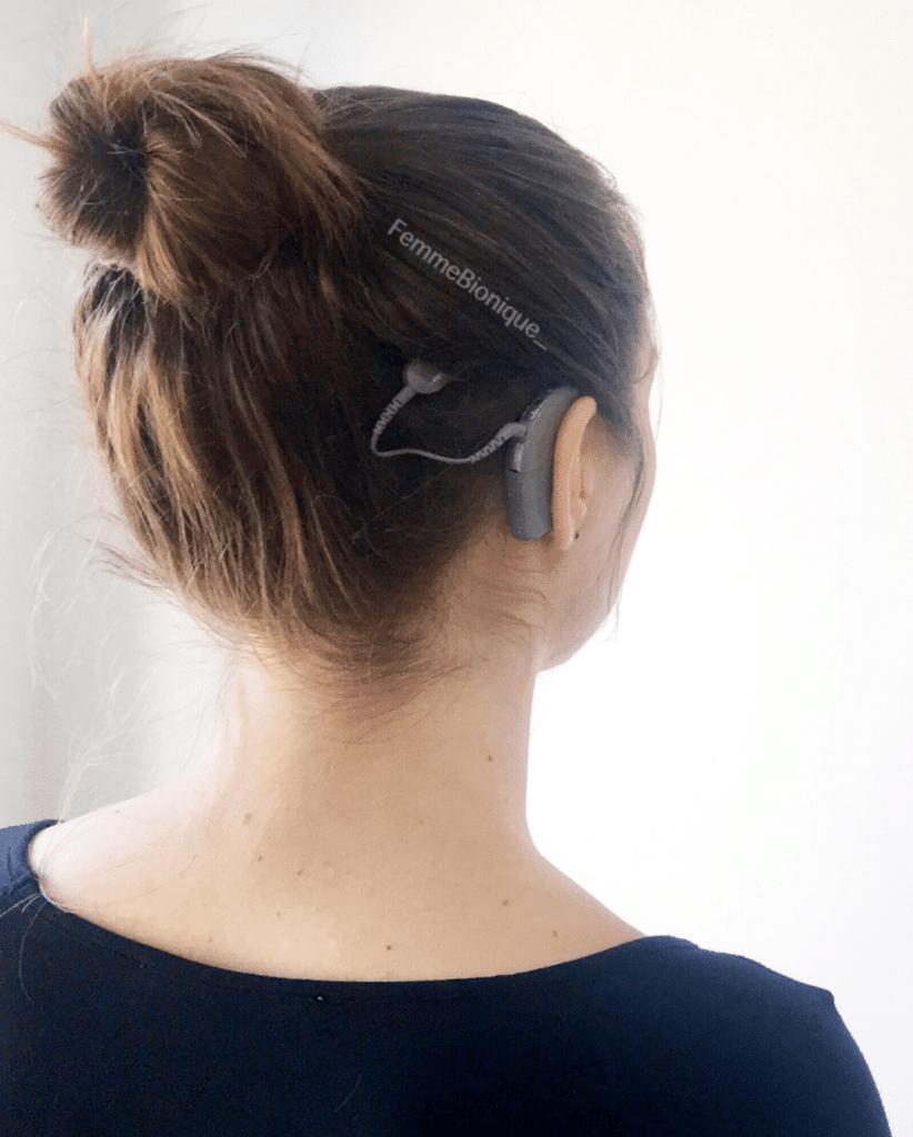 Profil d'une femme les cheveux attachés en chignon avec un implant cochléaire une partie posée sur l'oreille et l'autre partie aimantée sur la tête.